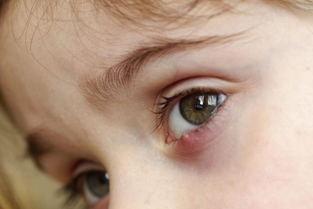 dziewczynka ma jęczmień na oku