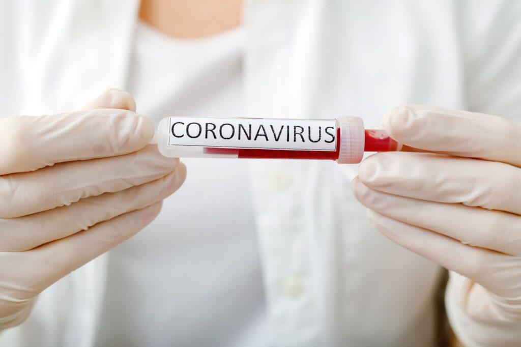 próbka krwi do badania na koronawirusa