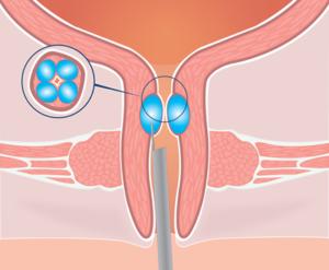 Bulkamid - leczenie WNTM
