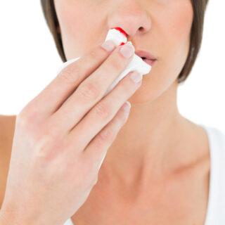 jak zatamować krwawienie z nosa